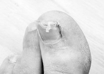 爪が割れる